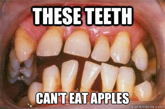 These Teeth Can't eat Apples - These Teeth Can't eat Apples  Why you should brush