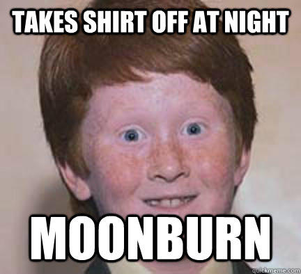 Takes shirt off at night moonburn