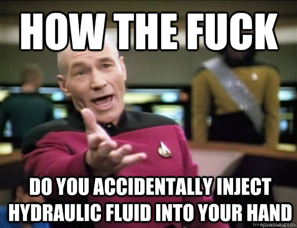 how the fuck do you accidentally inject hydraulic fluid into your hand - how the fuck do you accidentally inject hydraulic fluid into your hand  Annoyed Picard HD