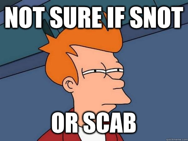 Not sure if snot Or scab - Not sure if snot Or scab  Futurama Fry