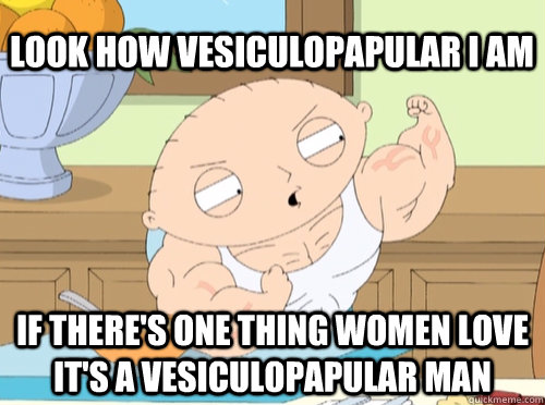 Look how vesiculopapular i am if there's one thing women love it's a vesiculopapular man - Look how vesiculopapular i am if there's one thing women love it's a vesiculopapular man  stewie vascular