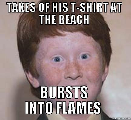 TAKES OF HIS T-SHIRT AT THE BEACH BURSTS INTO FLAMES  Over Confident Ginger
