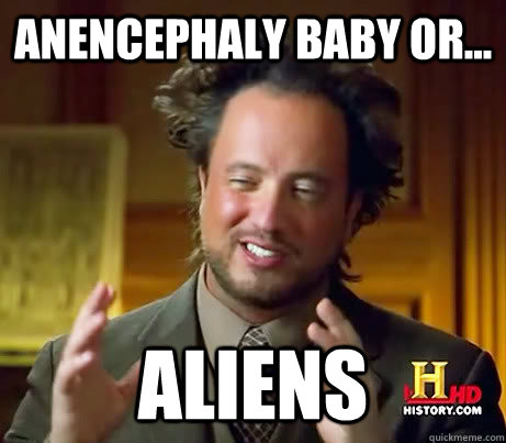 Anencephaly baby or... Aliens
