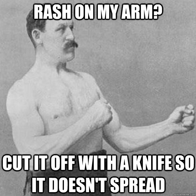 RASH ON MY ARM? CUT IT OFF WITH A KNIFE SO IT DOESN'T SPREAD - RASH ON MY ARM? CUT IT OFF WITH A KNIFE SO IT DOESN'T SPREAD  overly manly man