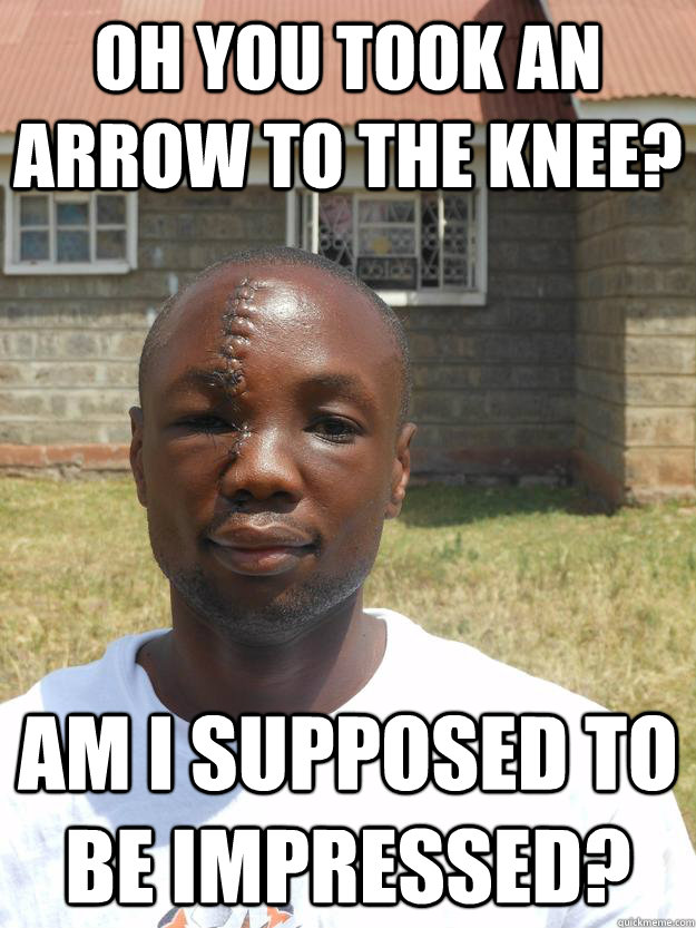 Oh you took an arrow to the knee? Am I supposed to be impressed?