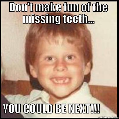 Rob 1978 No Teeth No Problem - DON'T MAKE FUN OF THE MISSING TEETH...         YOU COULD BE NEXT!!!         Misc