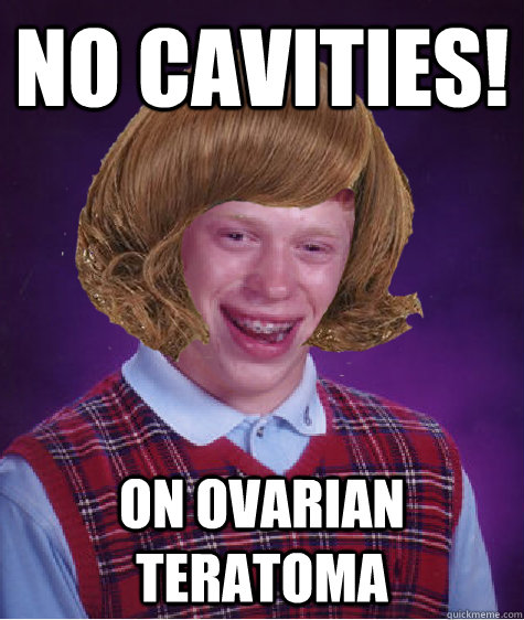 No Cavities! On ovarian teratoma