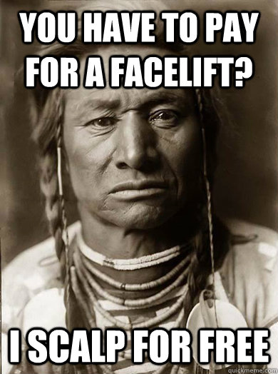 You have to pay for a facelift? I scalp for free - You have to pay for a facelift? I scalp for free  Unimpressed American Indian
