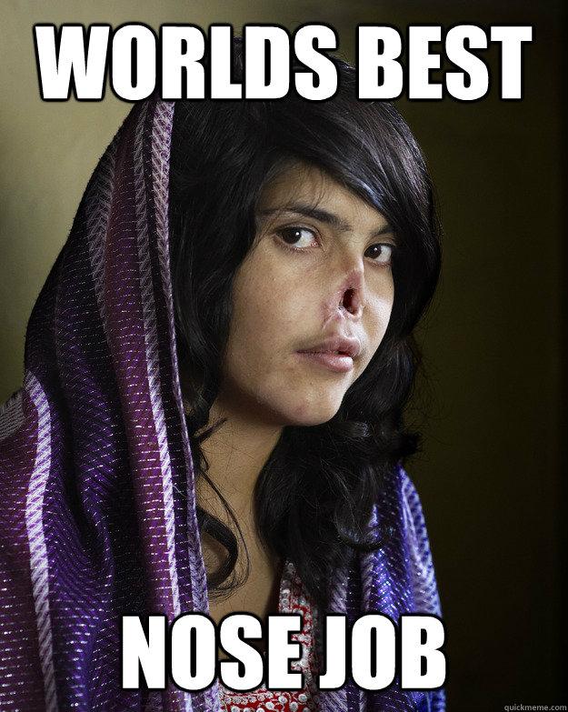 The Greatest Memes In The World : Worlds best nose job random meme quickmeme