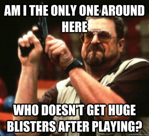 Am i the only one around here Who doesn't get huge blisters after playing? - Am i the only one around here Who doesn't get huge blisters after playing?  Am I The Only One Around Here