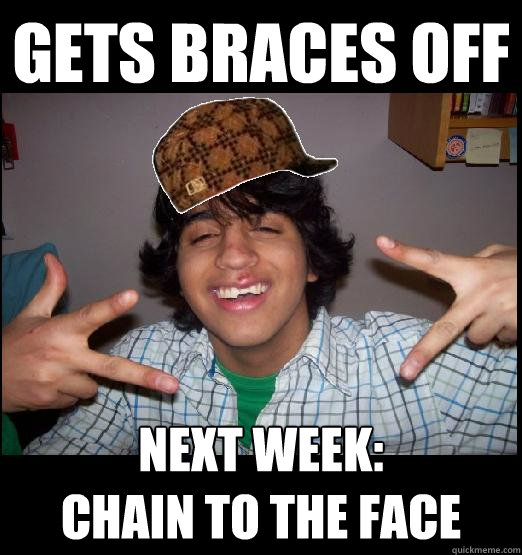Gets braces off Next week:  Chain to the face - Gets braces off Next week:  Chain to the face  Misc