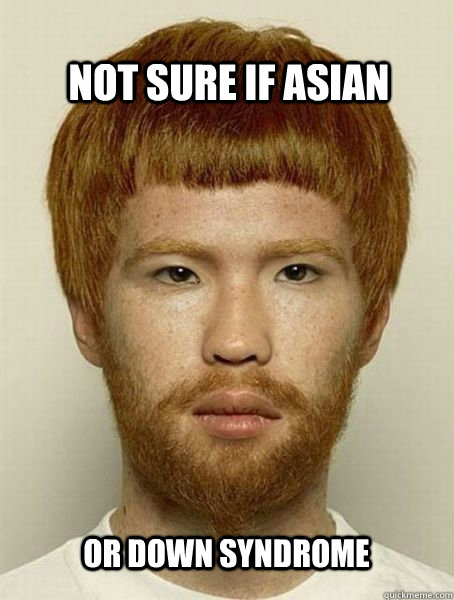 Not sure if asian or down syndrome