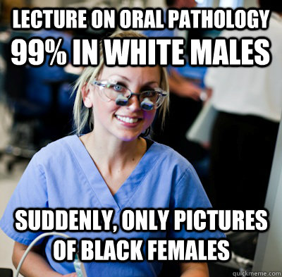Lecture on Oral Pathology 99% in white Males Suddenly, only pictures of black females  overworked dental student