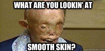 What are you lookin' at Smooth Skin?  Atom Bomb Survivor