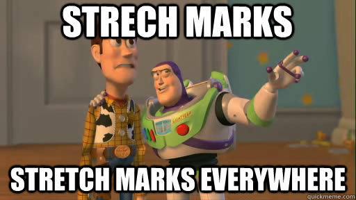 Strech marks Stretch marks everywhere - Strech marks Stretch marks everywhere  Everywhere