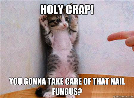 Holy crap! you gonna take care of that nail fungus? - Holy crap! you gonna take care of that nail fungus?  nail fungus
