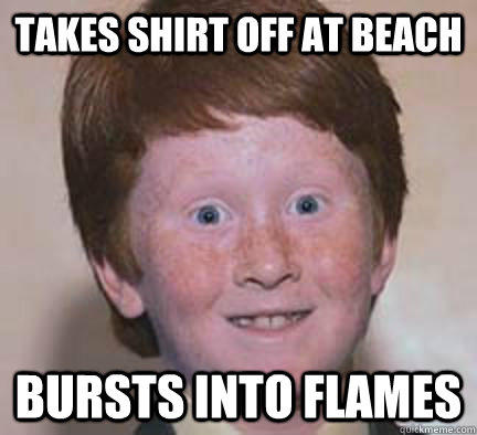 Takes shirt off at beach bursts into flames  Over Confident Ginger