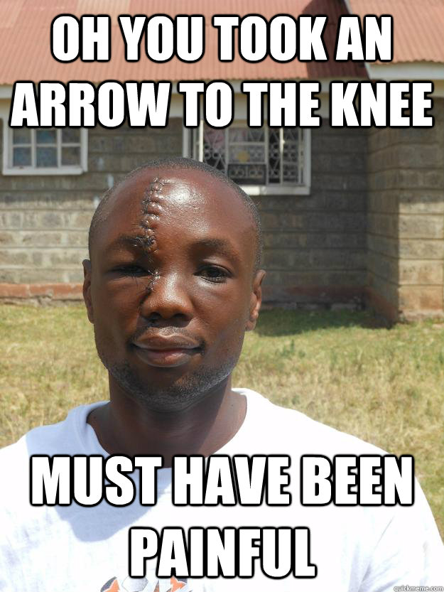 Oh you took an arrow to the knee Must have been painful  Overly Awesome Omari