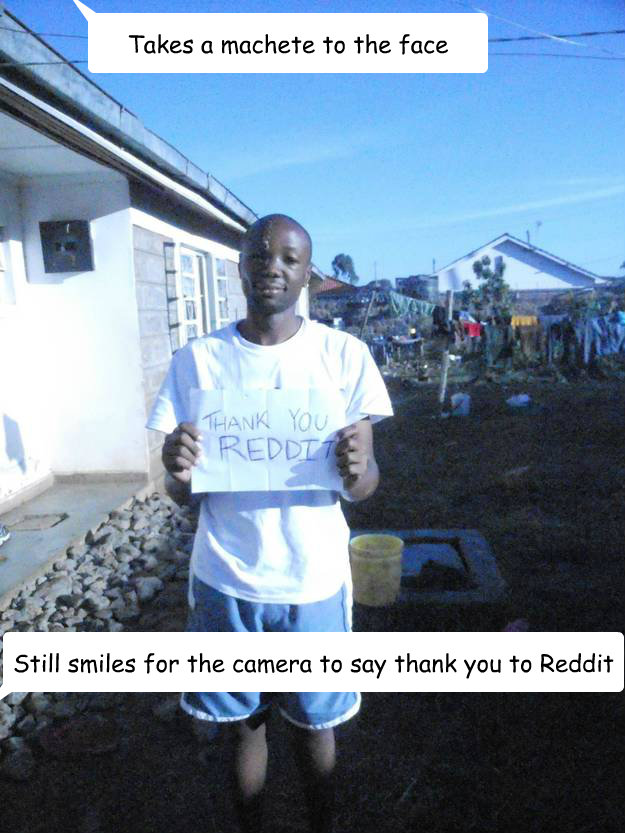 Takes a machete to the face Still smiles for the camera to say thank you to Reddit
