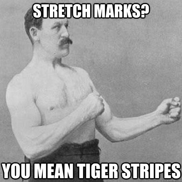 Stretch marks? you mean tiger stripes - Stretch marks? you mean tiger stripes  overly manly man