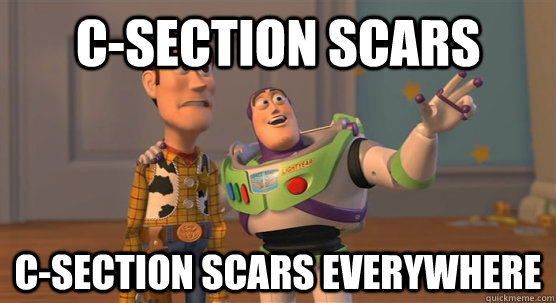 c-section scars c-section scars everywhere - c-section scars c-section scars everywhere  Toy Story Everywhere