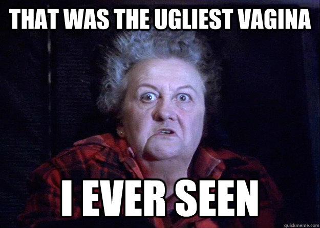 Ugliest vagina ever