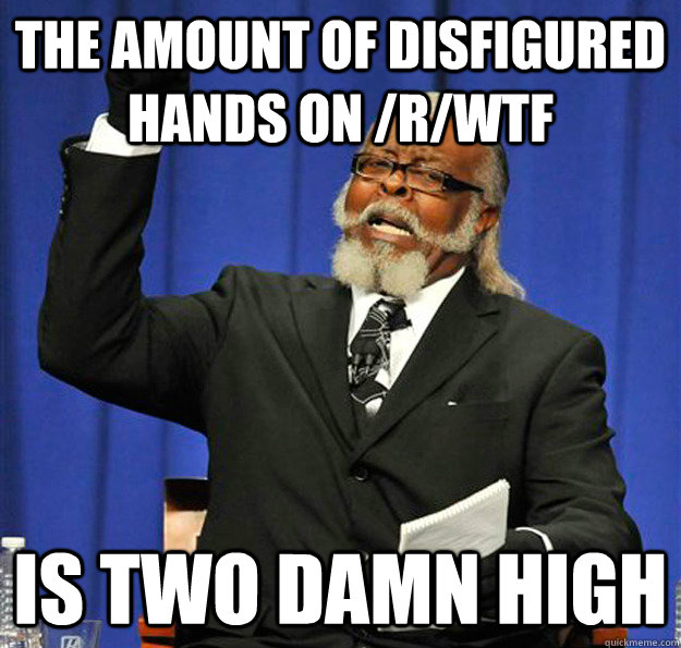 The amount of disfigured hands on /r/wtf  Is two damn high - The amount of disfigured hands on /r/wtf  Is two damn high  Jimmy McMillan