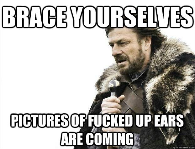 Brace yourselves Pictures of fucked up ears are coming - Brace yourselves Pictures of fucked up ears are coming  BRACEYOSELVES