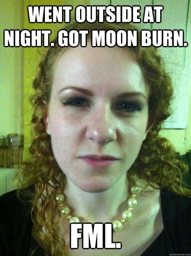 Went outside at night. Got moon burn. FML.
