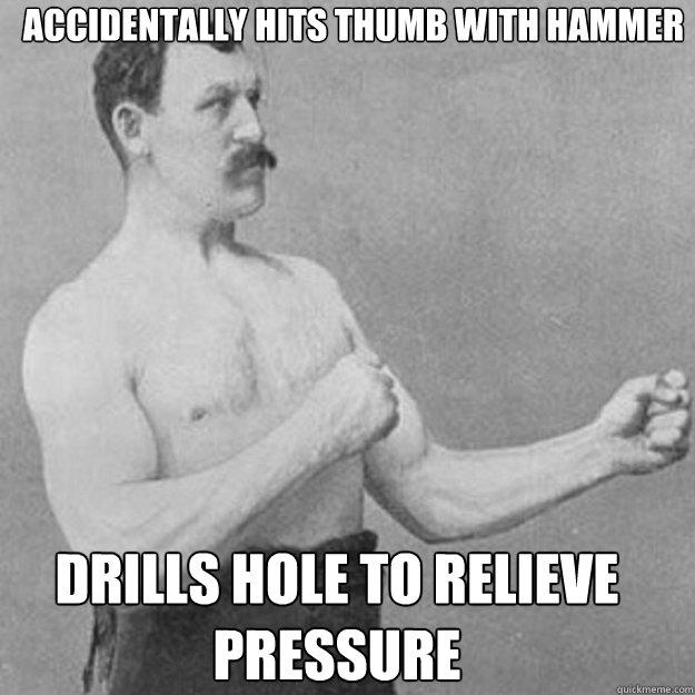 Accidentally hits thumb with hammer drills hole to relieve pressure