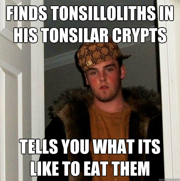 Tonsilloliths Smell Bad