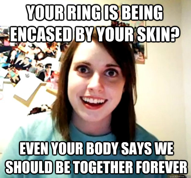 Your ring is being encased by your skin? even your body says we should be together forever - Your ring is being encased by your skin? even your body says we should be together forever  Misc
