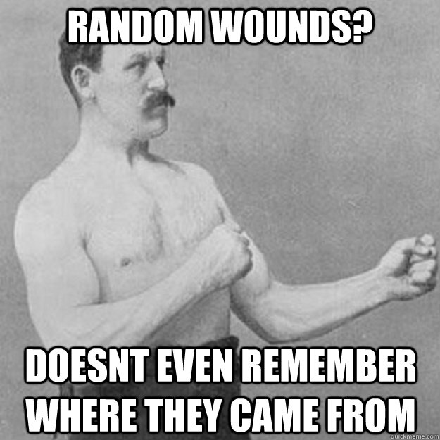 random wounds? doesnt even remember where they came from - random wounds? doesnt even remember where they came from  overly manly man