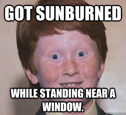 Got sunburned while standing near a window. - Got sunburned while standing near a window.  Over Confident Ginger