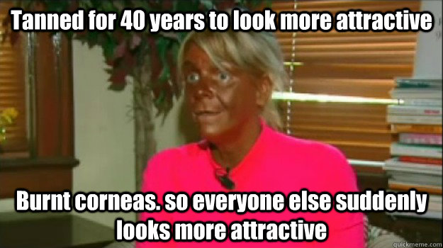 Tanned for 40 years to look more attractive Burnt corneas. so everyone else suddenly looks more attractive